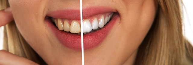 Too Much Tooth Whitening Could Lead to Endodontic Therapy